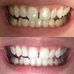 Charcoal Powder Natural Teeth Whitening_5